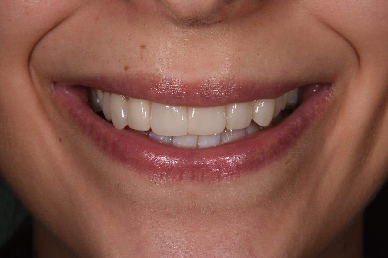 After Cosmetic Dentistry-1