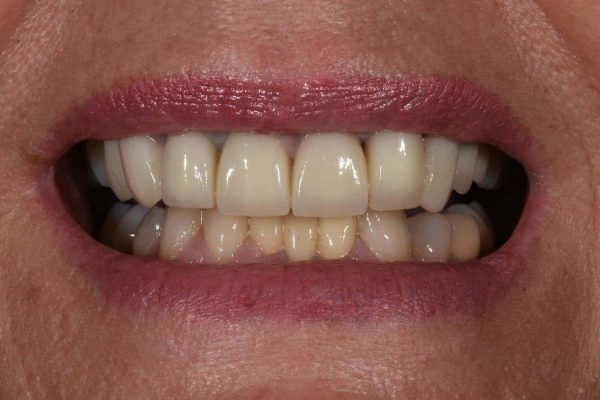 After Cosmetic Dentistry-2