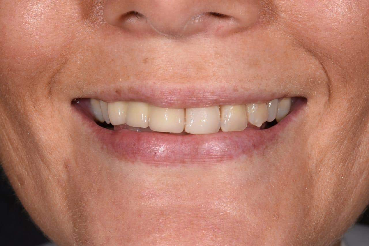Cosmetic Dentistry Patient 5 Before | The Crown Dental Group