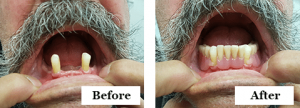 before and after dental implant supported dentures