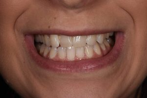 Before Cosmetic Dentistry-1