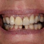 Before Cosmetic Dentistry-2
