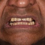 Cosmetic Dentistry Patient 1 Before | The Crown Dental Group