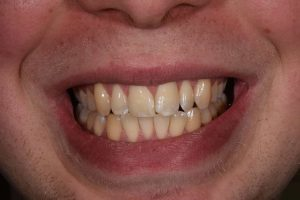 Cosmetic Dentistry Patient 2 Before | The Crown Dental Group