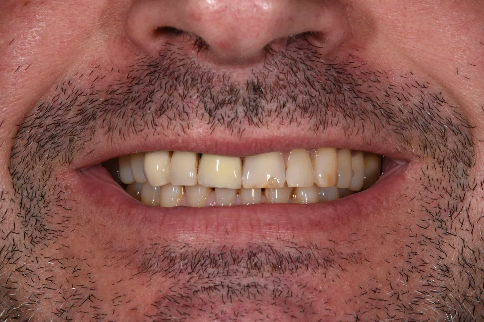 Cosmetic Dentistry Patient 3 Before | The Crown Dental Group