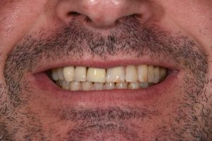 before cosmetic dentistry