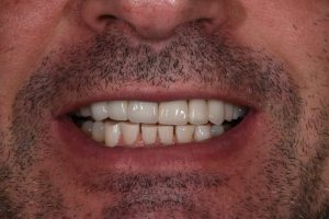 Cosmetic Dentistry Patient 3 After | The Crown Dental Group
