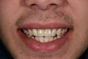 Cosmetic Dentistry Patient 4 After | The Crown Dental Group