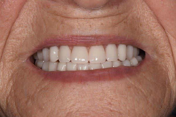 Denture Before and After | Patient 03 After | The Crown Dental Group