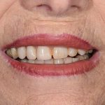 Denture Before and After | Patient 05 Before | The Crown Dental Group