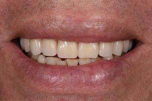 After Dentures-1