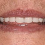 Complete upper and lower acrylic dentures | After | The Crown Dental Group