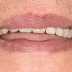 Complete upper and lower acrylic dentures | Before | The Crown Dental Group