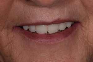 After Dentures-3