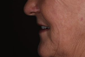 Sideview After Dentures