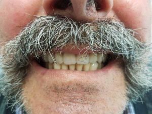 after getting dentures