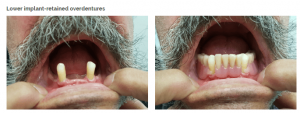 before and after dentures