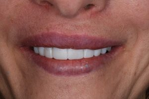 After SB cosmetic dentistry