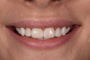 After YG venners cosmetic dentistry