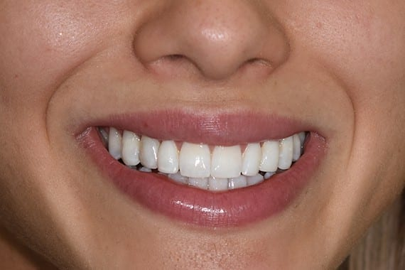 After Ellie S Cosmetic Dentistry
