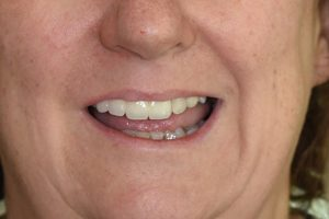 After Jennifer Browning cosmetic dentistry