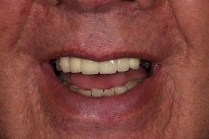 After Keith Sutherland cosmetic dentistry