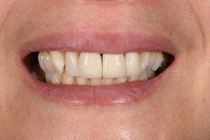 After Lan Ng cosmetic dentistry