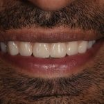 After Mujeeb denture work