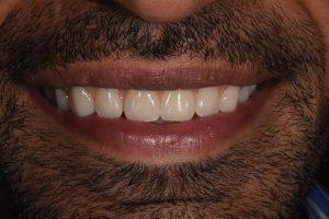 After Mujeeb denture work