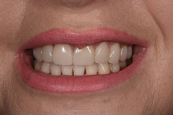 After Nicky Scott cosmetic dentistry