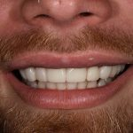 After Ricky Perez cosmetic dentistry