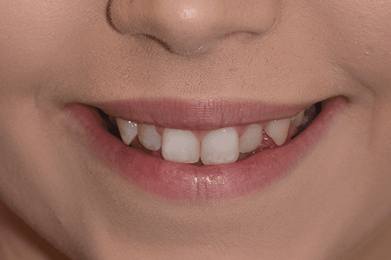 Before Caitlin cosmetic dentistry