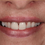 Before SB cosmetic dentistry