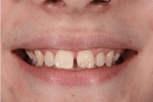 Before YG venners cosmetic dentistry