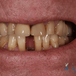 Before Ben D Cosmetic Dentistry