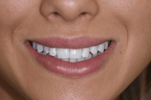 Before Ellie S Cosmetic Dentistry