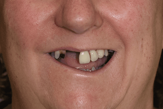 Before Jennifer Browning cosmetic dentistry