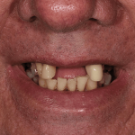 Before Keith Sutherland cosmetic dentistry