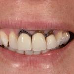 Before Lan Ng cosmetic dentistry