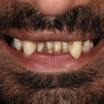 Before Mujeeb denture work