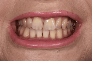 Before Nicky Scott cosmetic dentistry