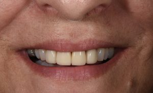 after-carol-clark-cosmetic-dentistry