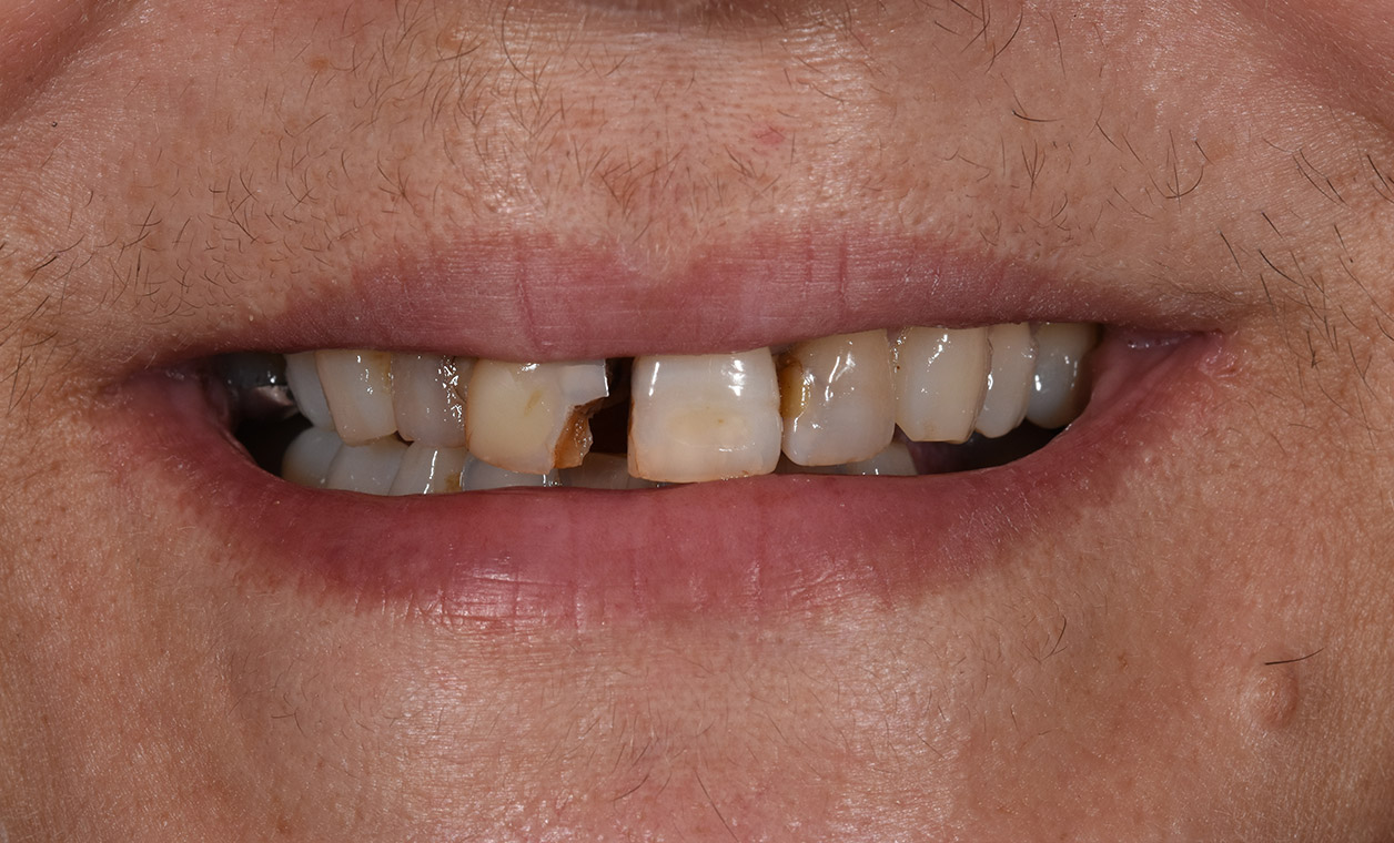 before-carol-clark-cosmetic-dentistry