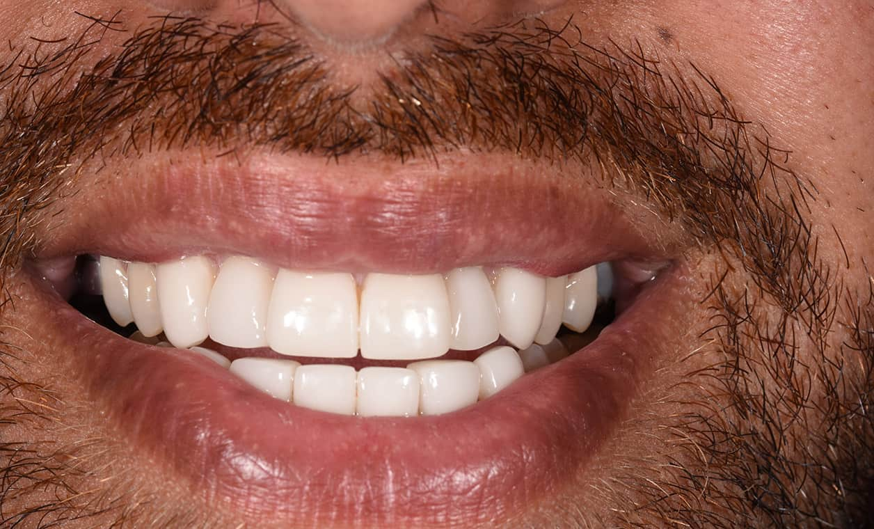 sol-teeth-after-cosmetic-dentistry