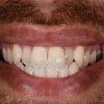 sol-teeth-before cosmetic dentistry