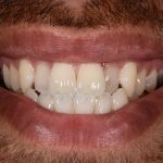 Cosmetic Dentistry Gallery