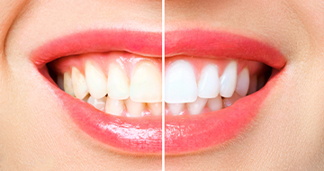 Zoom! Teeth Whitening can help achieve pearly white teeth
