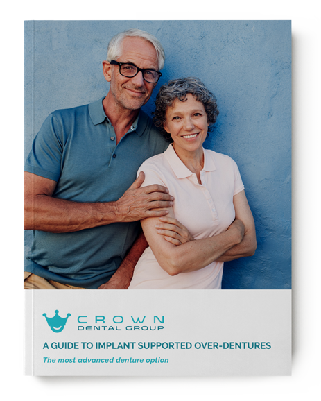 Implant Supported Overdentures Guide