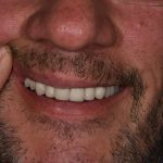 After Cosmetic Dentistry - Crowns, Bridges, Tooth Whitening